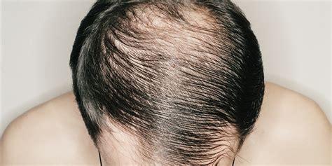 Male Baldness: When Do Men Go Bald?