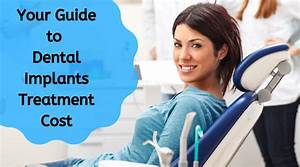 Helpful And Reliable Guide To Your Dental Implants