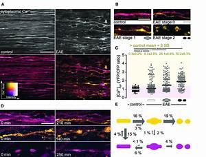 Cytoplasmic Calcium Levels Predict Axonal Fate In