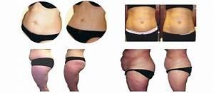 Lymphatic Massage For Weight Loss  U2013 Blog Dandk