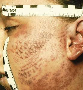Patterned Bruise Of The Left Cheek Due To Kicking With A