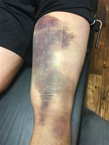 Hamstring Injury Treatment