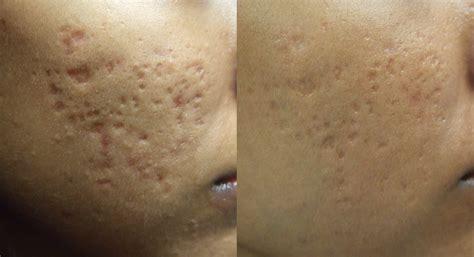 Fraxel for Skin Rejuvenation | Brampton, Kleinburg, | DM