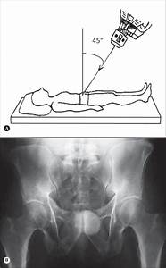 Outlet View Of The Pelvis  A  Patient In Horizontal Supine