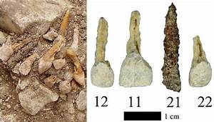 Uncovering the truth behind ancient dental implants ...