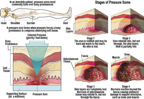 Bed Sore In Continuity Of Skin by Facts About Bed Sores Pressure Wounds