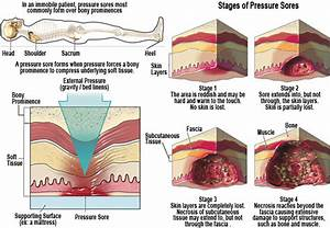 Pressure Sores Ulcers - Cabot Skin Care