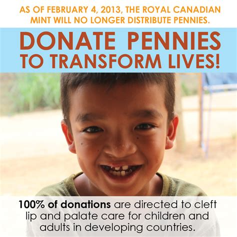 Cleft Lip Charity We Work Donate Pennies To Transform Lives
