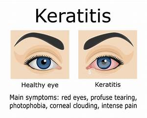 What To Know About Keratitis  Dangers  Symptoms  Treatment
