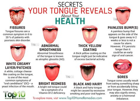 what color should your tongue be 10 secrets your tongue reveals about your health top 10