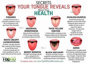 10 Secrets Your Tongue Reveals about Your Health | Top 10 ...
