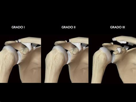 Artrosis grado 1