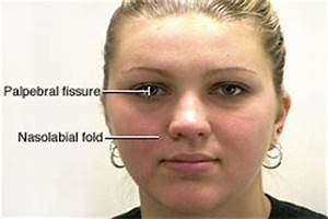 Fissure, palpebral. Causes, symptoms, treatment Fissure ...