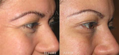 Wrinkle Treatment Dermal Fillers Deep Facial Lines Tear. Online Universities In South Carolina. Remote Assistance Tools Air Conditioner Store. Schools That Offer Cna Classes Online. Personal Training Liability Insurance. Financial Advisor Miami Fashion Design Florida. How To Make A Knowledge Base. Injury Attorney Corpus Christi. Non Profit Graduate Programs Rehab In Utah