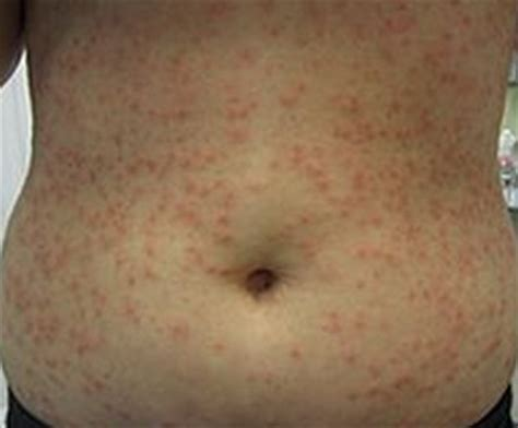hot tub after breast biopsy infected hair follicle causes symptoms pictures and