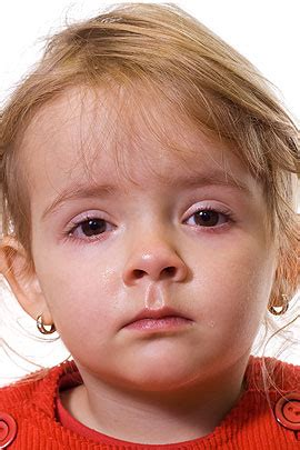 bindehautentzuendung bei kindern ursachen und behandlung