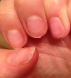 Bed Of Nails Nail Bar by Why Your Manicure Could Ruin Your Nails For Life Horror