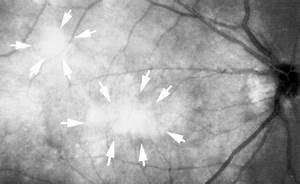 Choroidal abnormalities in neurofibromatosis type 1 with