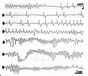 Catecholaminergic Polymorphic Ventricular Tachycardia in ...