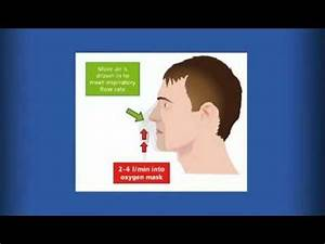 Oxygen therapy in acute illness - Practical examples ...