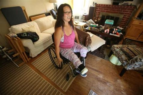 For Bay Area amputees, getting new prostheses a huge ...
