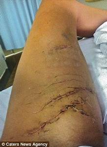 'My leg was in the croc's gob': Australian woman mauled by ...