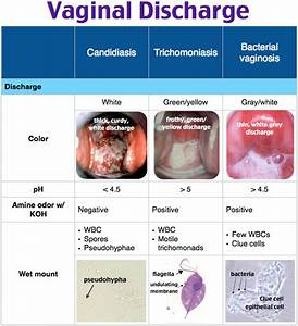 Trichomoniasis Discharge Color Podcast Ep 7 Hypoglycemia ...