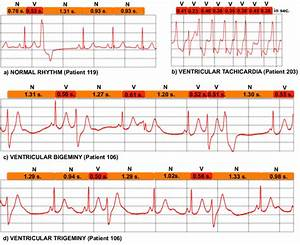 Some Ecg Patterns  A  Normal Sinus Rhythm  B  Ventricular