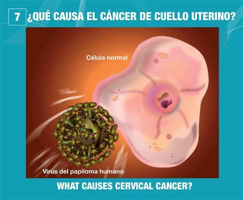 Causes Of Vaginal Cancer Likepossiblyga