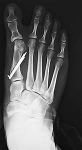 Hallux Varus - Foot & Ankle - Orthobullets