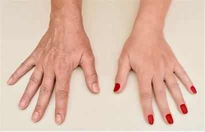 Hand Rejuvenation Southington Ct Clinical Skin Services