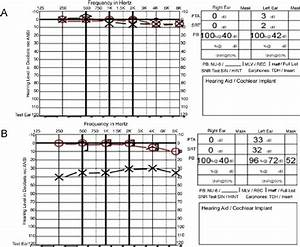 Example Audiograms   A  Audiogram Illustrating Normal