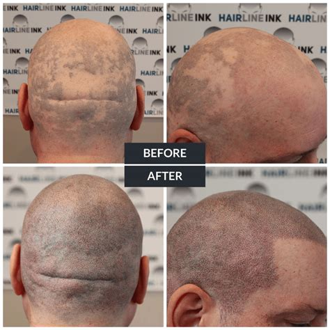 hair loss front of head scalp micropigmentation for alopecia treatment by hairline ink hairline ink