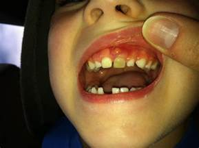 What Does an Abscess Tooth Look Like in Children