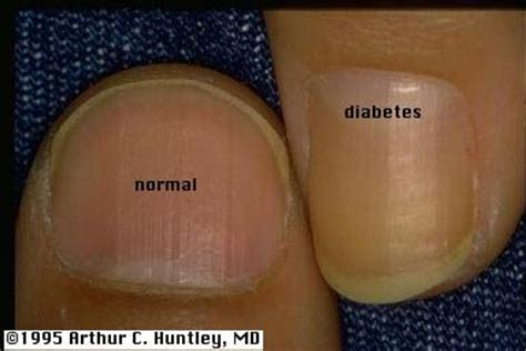 healthy  unhealthy nails pinterest diabetes