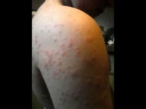 Allergic Reaction To Amoxicillin  Youtube. Merchant Property Management. Top Athletic Training Graduate Programs. Canary Security Review Mba Programs In Dallas. Springing Durable Power Of Attorney. Hp Proliant Dl160 G6 Server Help Fix Credit. Junk Removal West Palm Beach. American Document Destruction. Dentist In Lexington Ky Cash Back Reward Card