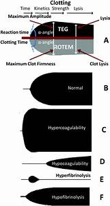 The Simultaneous Occurrence Of Both Hypercoagulability And Hypofibrinolysis In Blood And Serum