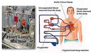 Beating Heart Bypass Surgery Heart Bypass Surgery