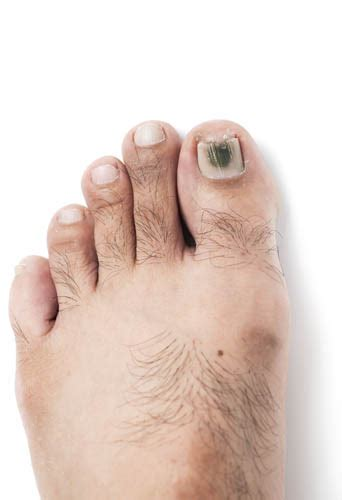 Symptoms Of Toenail Fungus. Back To School Signs. Toxic Signs. Sophia Yin Signs. Extruded Signs Of Stroke. Leher Signs. Freedom Signs. Breaths Per Signs. Heart Palpitation Signs