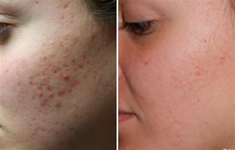 Get clear skin with Acne scar treatment at Dream Derma Clinic