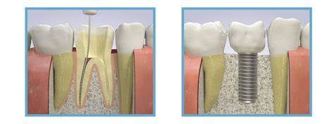 dental implants oakbrook il root canal  dental