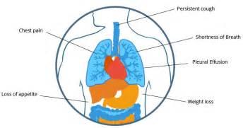 peritoneal mesothelioma signs  symptoms canceroz