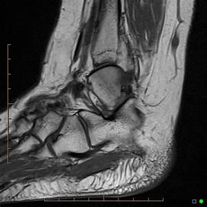 Lipoma of tibialis anterior tendon sheath | Radiology Case ...