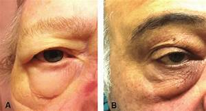Two Patients With Periorbital Edema After Initiating Pap
