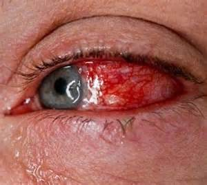 Home Remedies For Conjunctivitis Conjunctivitis