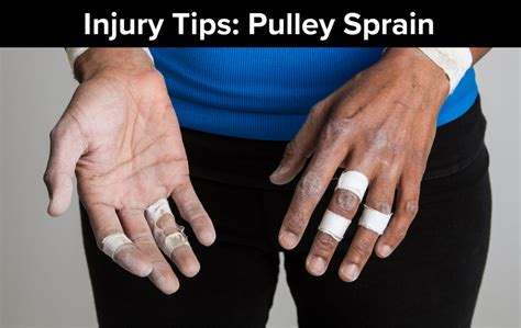 Rock Climbing Injury Tips Finger Pulley Sprain The
