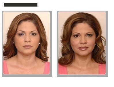 facial exercises facial fitness