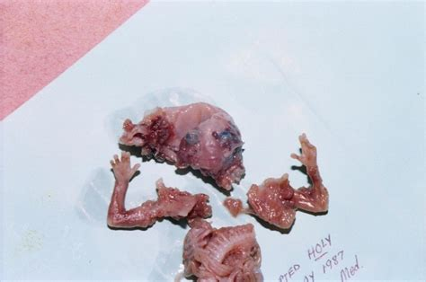 Cytotec At 7 Weeks Aborted Fetus 12 Weeks Www Pixshark Com Images