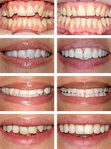 Hygiene Tips for Teens Who Wear Braces | The Perfect Smile ...