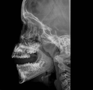 Adenoidal hypertrophy | Image | Radiopaedia.org